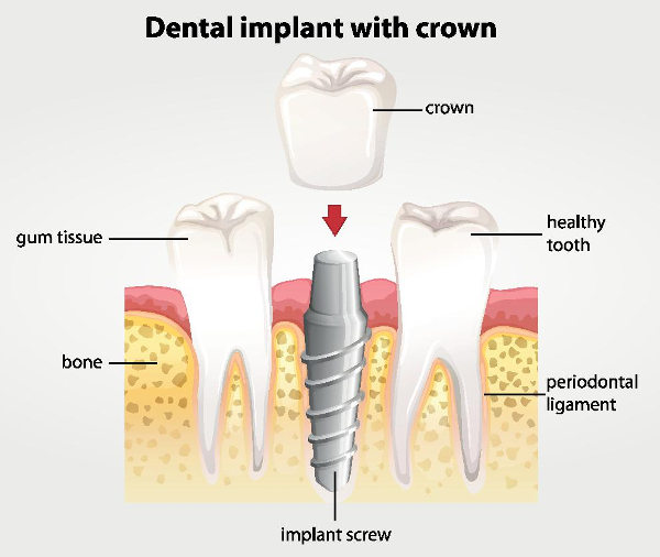 content-implant-crown