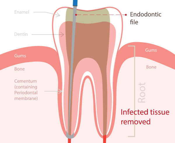 content-root-canals