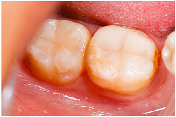 feature-tooth_colored_fillings_content
